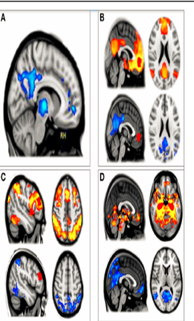 Passive eyes closed resting state fMRI scan Psilocybin decreases BOLD signals in DFM and decouples them. (R. L. Carhart-Harris et al., 2012; 2013)