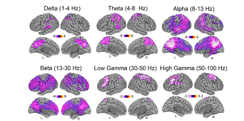 MEG data showing decrease in brain wave activity (Muthukumaraswamy et al., 2013)